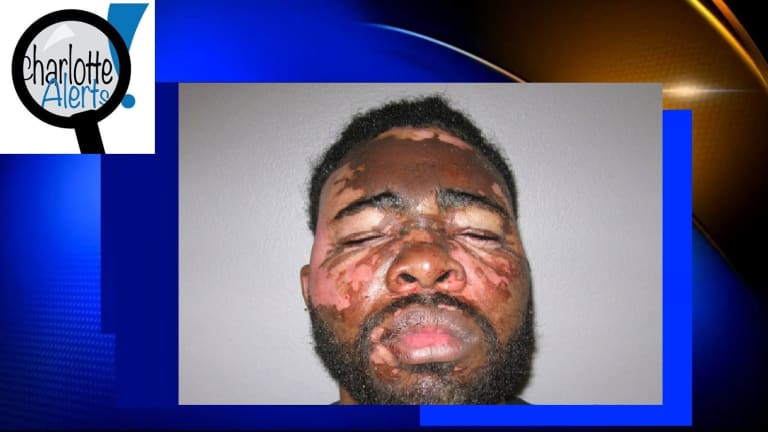 WOMAN THROWS HOT GREASE ON BLACK MAN DURING ALLEGED BURGLARY